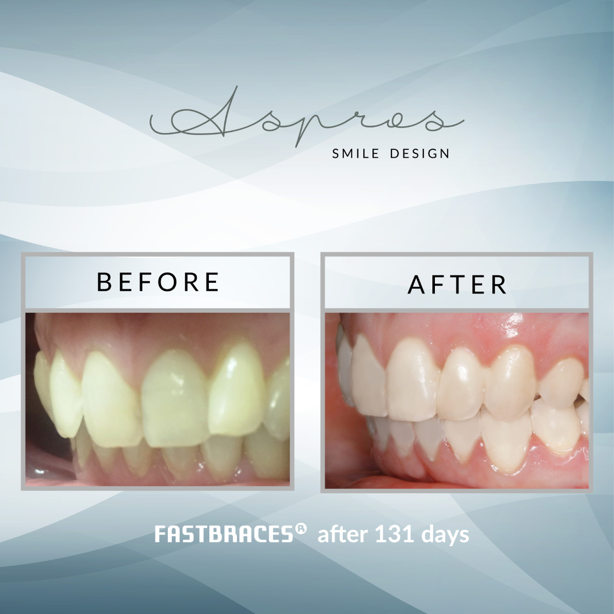Fast Braces – Andreas Aspros